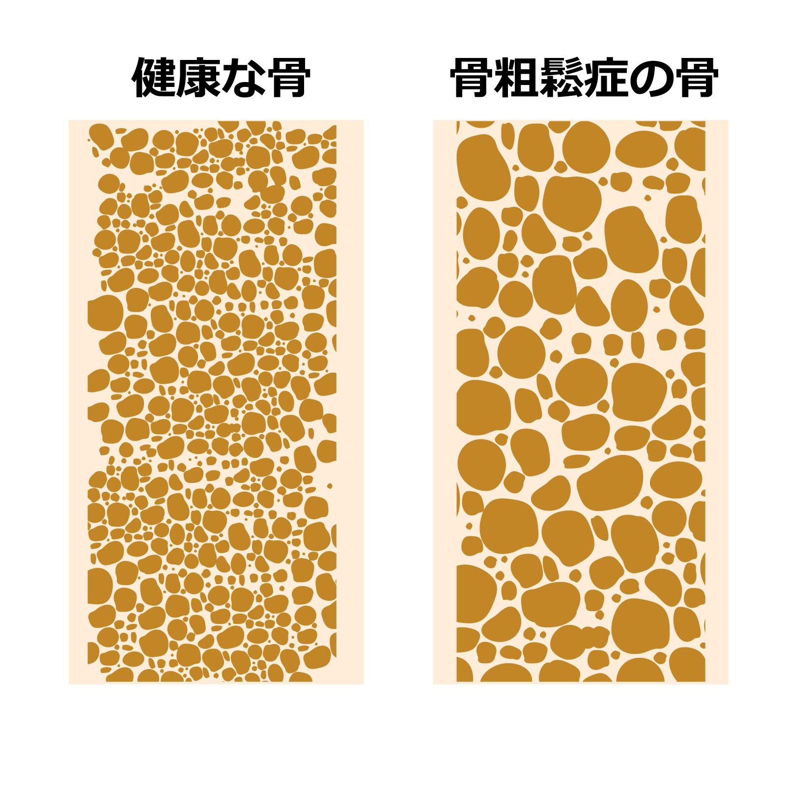 骨粗しょう症と膝痛:みらいトピックス:船橋整形外科 みらいクリニック:Funabashi Orthopedic Mirai Clinic